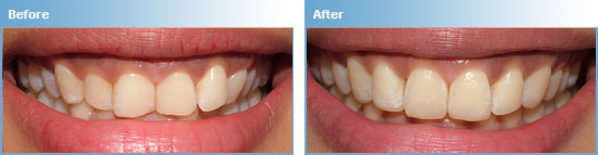 CFast Teeth Straightening in Maroubra