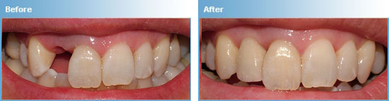 Implant Crowns in Maroubra