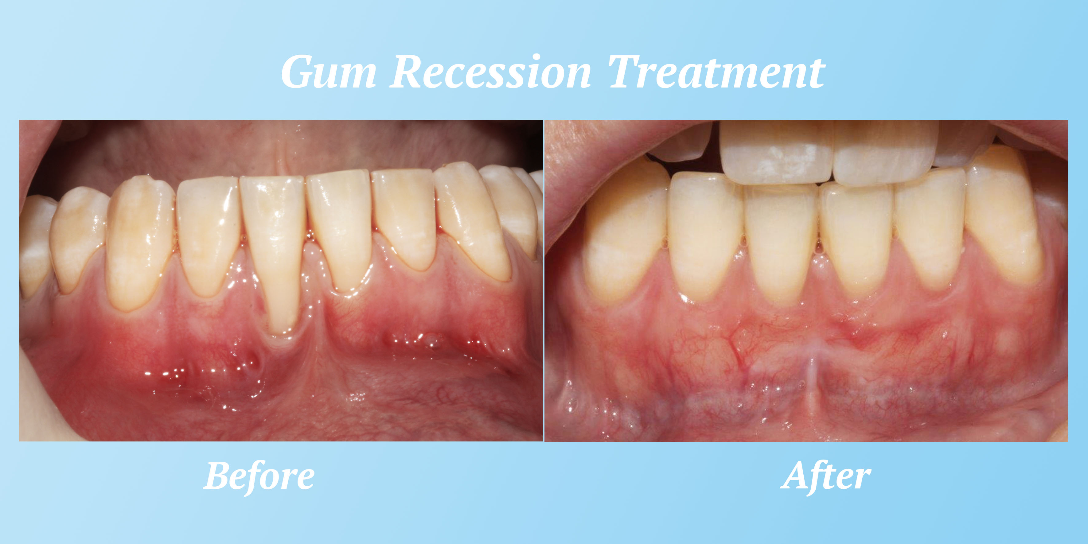 gumrecession